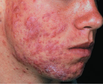 nodulocystic acne  Severe Cystic Acne Scars