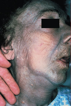 Argyria - Case report