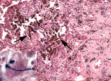 Asbestos Fibers In Lungs : The doubt that does not offend asbestos and idiopathic pulmonary