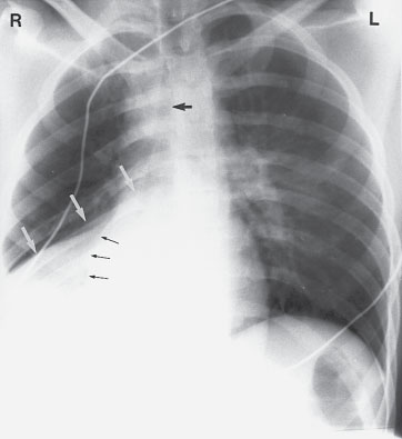 Right Middle Lobe Atelectasis