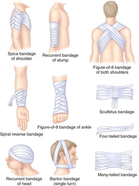 Barton Bandage Various types of bandages