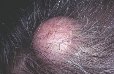 Sebaceous Cyst Scalp