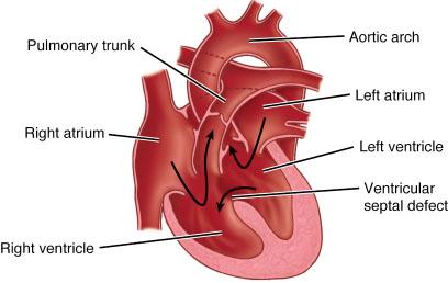 ventricular septal defect, Human Body