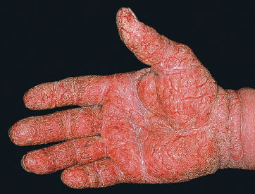 atopic dermatitis icd 10