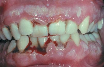 necrotizing ulcerative gingivitis