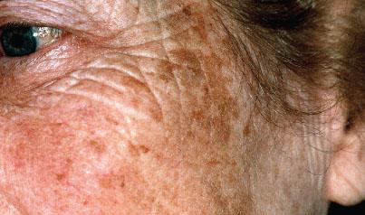 аллергия на обезболивающие препараты