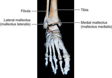 malleolus lateralis