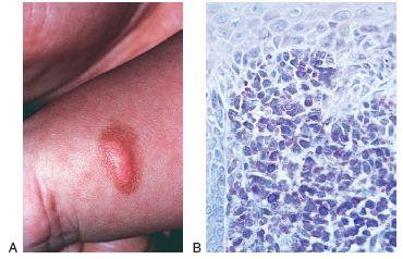 Mastocytosis – Solitary Mastocytoma | Perri Dermatology
